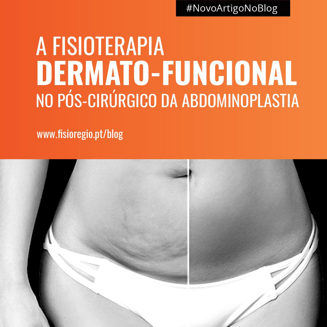 A Fisioterapia Dermato-funcional no pós cirúrgico numa Abdominoplastia